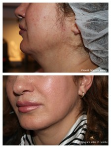 face-lift-program-225x3001