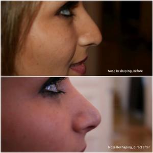 sanaz-nose-fotor-300x3001